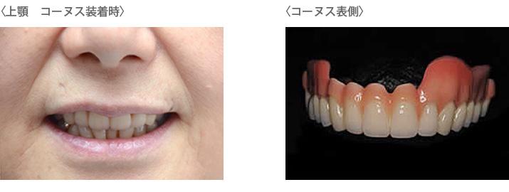 義歯コーヌスの装着時と表側
