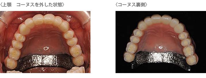義歯コーヌスを外した状態とコーヌス裏側