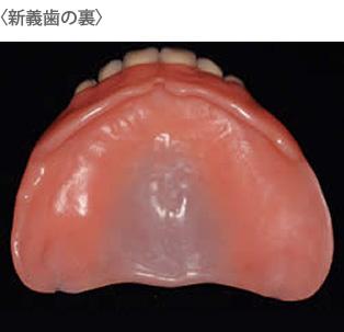 新義歯の裏イメージ
