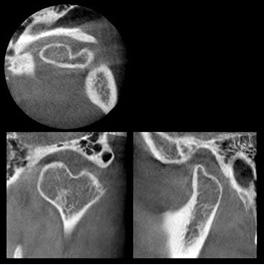 CTで見た顎関節
