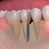 img_implant-8-3