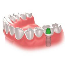 img_implant01-01