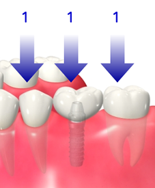 img_implant02-01
