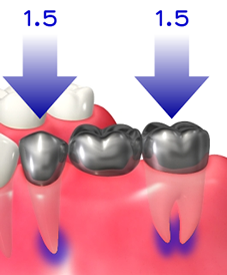 img_implant02-02