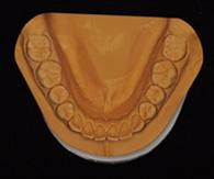 口腔内模型