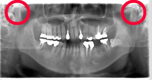 パノラマレントゲンで見た顎関節