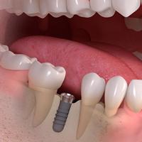 img_implant-5-2