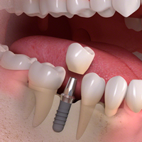 img_implant-8-1