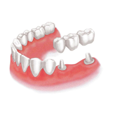 img_implant01-02