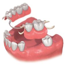 img_implant01-03