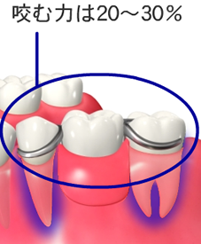 img_implant02-03