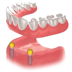 img_implant02